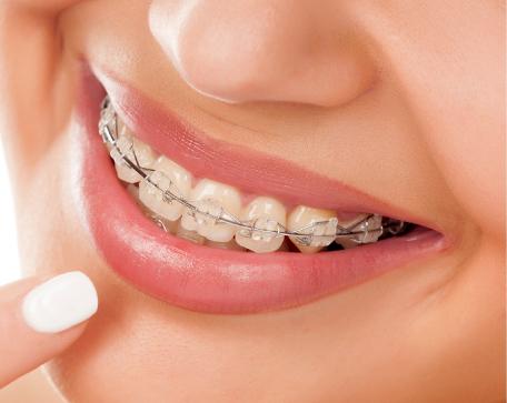 Ortodoncia Gredy Dental